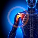 Alleviate Shoulder Pain